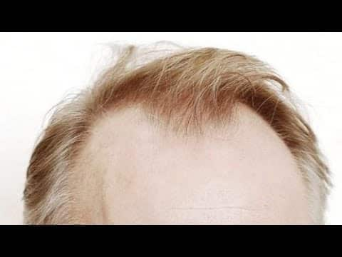 Top 10 Hairstyles for Balding Men Ideas 10