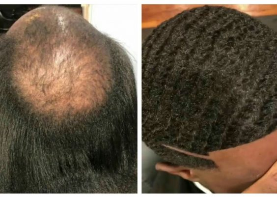 Man Weave Transformation #13 | Cut By Valdez The Barber | Afro Haircut 12