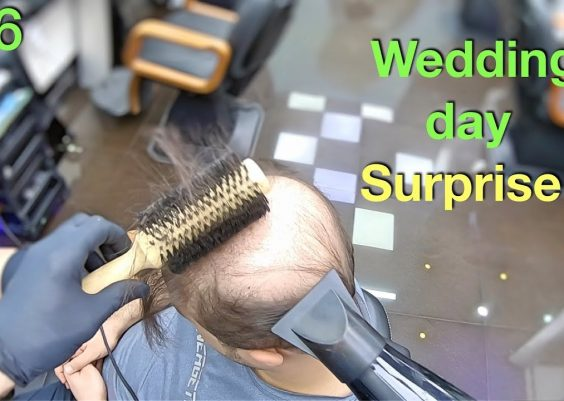 Wedding Day Surprise! Wife Won't Recognize Him (Hairstyle for Men) Hair Building Fibers 2019 17